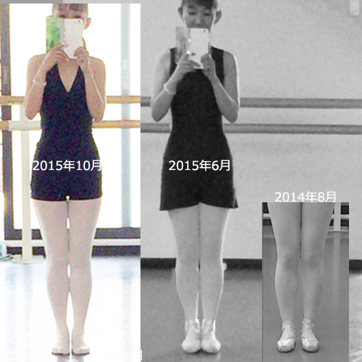 Knee201510